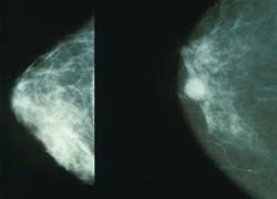 Normal_mammo_borst_kanker_mammogram