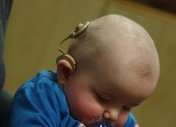 Normal_normal_infant_with_cochlear_implant
