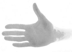 Normal_hand_reuma